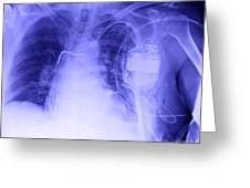 X-ray Of A Pacemaker Greeting Card