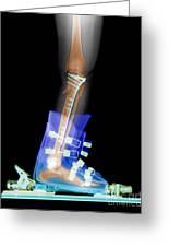 X-ray Of Broken Bones In Ski Boot Greeting Card