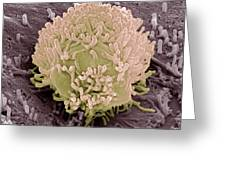 Colorectal Cancer Cell Greeting Card by Steve Gschmeissner