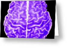 Enhanced 3d Surface Rendering Of Brain Greeting Card