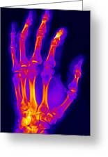 Finger Fracture Greeting Card