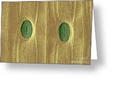 Garlic Leaf Stomata, Esem Greeting Card