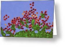 H1n1 Swine Flu Virus, Tem Greeting Card by Dr Klaus Boller