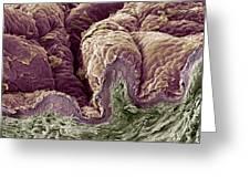 Skin Tissue, Sem Greeting Card by Steve Gschmeissner