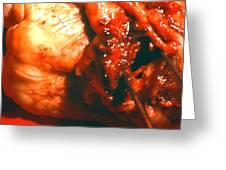 Blocked Artery. Greeting Card