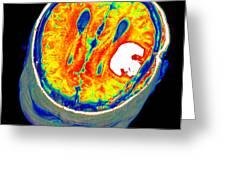 Brain Tumour, 3d-mri Scan Greeting Card by Pasieka