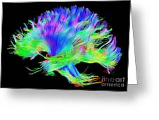 Fiber Tracts Of The Brain, Dti Greeting Card