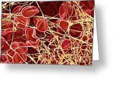 Blood Clot, Sem Greeting Card by Steve Gschmeissner