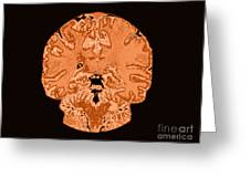 Coronal View Mri Of Normal Brain Greeting Card by Medical Body Scans