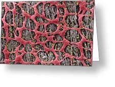 Myenteric Plexus, Sem Greeting Card