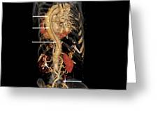 Aortic Aneurysm Ct Scan Greeting Card