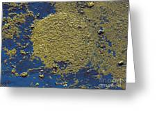 Aerosolized Droplet Of Toilet Water Sem Greeting Card