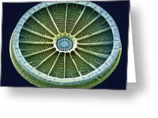 Diatom, Sem Greeting Card by Steve Gschmeissner