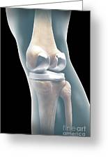 Knee Replacement Greeting Card