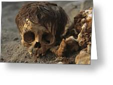 A Close View Of A Human Skull Greeting Card