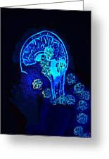 Al In The Mind Black Light View Greeting Card