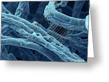 Anthrax Bacteria Sem Greeting Card by Eye Of Science and Photo Researchers