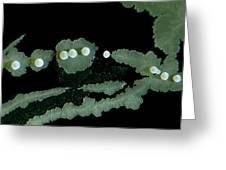 Bacterial Colony, Lm Greeting Card