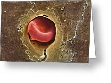 Capillary, Sem Greeting Card