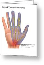 Carpal Tunnel Syndrome, Illustration Greeting Card