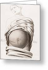 Cesarean Section, Incisions Greeting Card