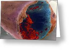 Coloured Sem Of A Blood Clot In Coronary Artery Greeting Card