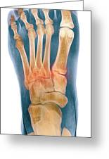 Crushed Broken Foot, X-ray Greeting Card by