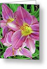 Day Lilys Greeting Card