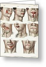 Facial Surgery, Illustration, 1846 Greeting Card