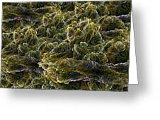 Fractal Under The Microscope Greeting Card