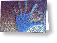 Hand That Giveth Greeting Card