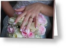 Jamies Hand Greeting Card