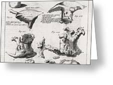 Kidney Stones, 18th Century Greeting Card