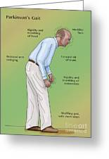 Man With Parkinsons Disease Greeting Card