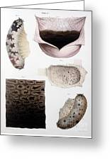 Melanoma, Blood And Stomach Greeting Card