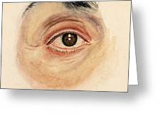 Melanoma Of Iris, Medical Illustration Greeting Card