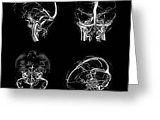Normal Intracranial Venous System, 3d Ct Greeting Card