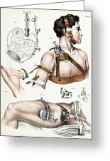 Operative Surgery, Illustration, 1846 Greeting Card