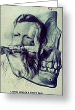 Polaroid Transfer Skull Anatomy Teeth Skeleton Beard Greeting Card