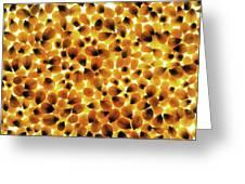Popcorn Seeds Greeting Card