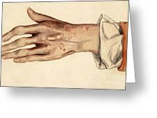 Psoriasis Guttata, Illustration, 1887 Greeting Card