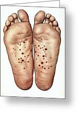 Psoriasis Of Feet, Illustration Greeting Card