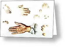 Psoriasis, Syphilis, Onychomycosis Greeting Card