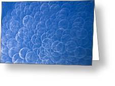 Raindrops On Window Greeting Card