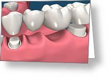 Restorations For Missing Teeth Implants, Dentures And Bridges Greeting Card