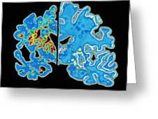 Sectioned Brains: Alzheimer's Disease Vs Normal Greeting Card