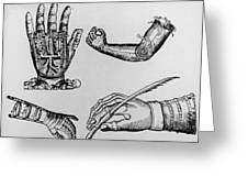 Selection Of 16th Century Artificial Arms & Hands. Greeting Card by Dr Jeremy Burgess.