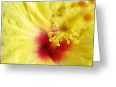 So Sweet In Yellow Greeting Card