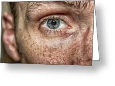 The Human Eye Greeting Card