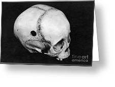 Trepanning: Skull Greeting Card